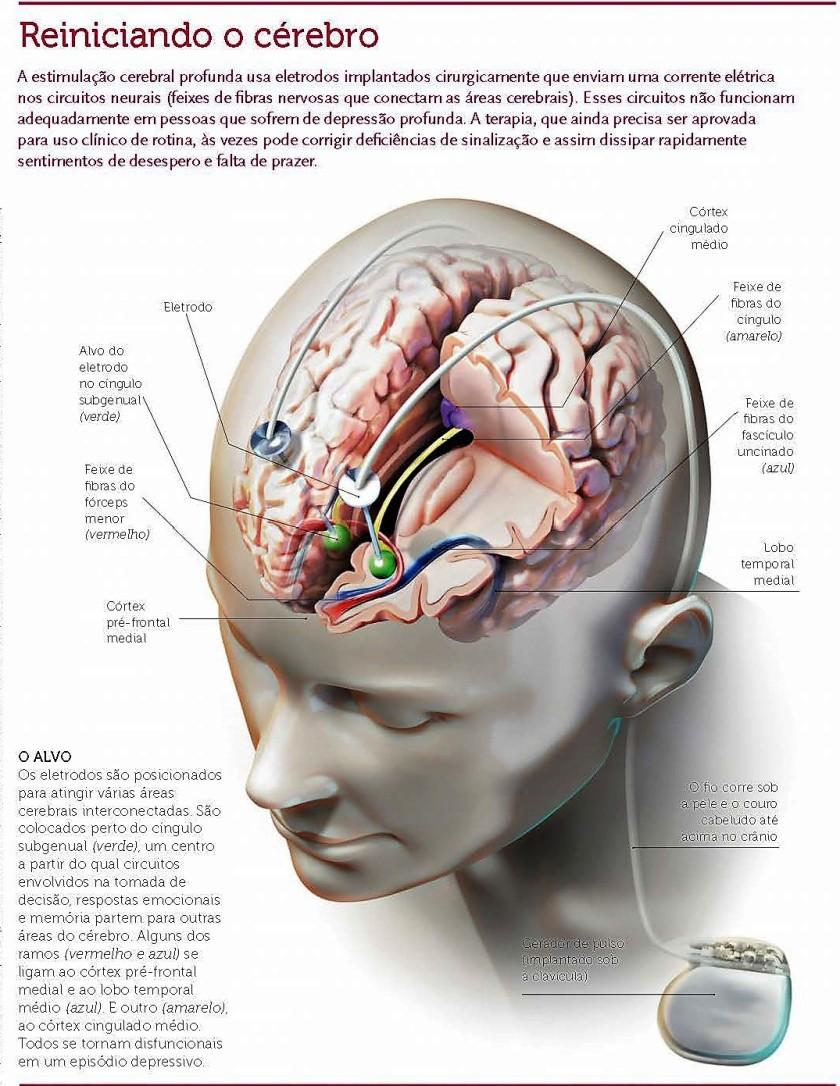Marca-passos cerebral para curar a depressão3