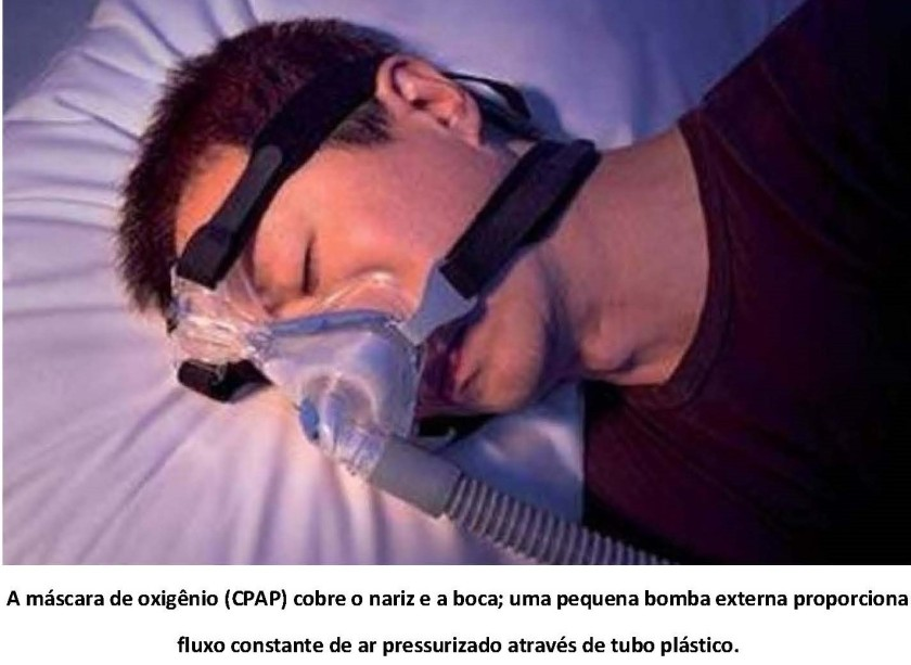 ronco - uma epidemia barulhenta.3