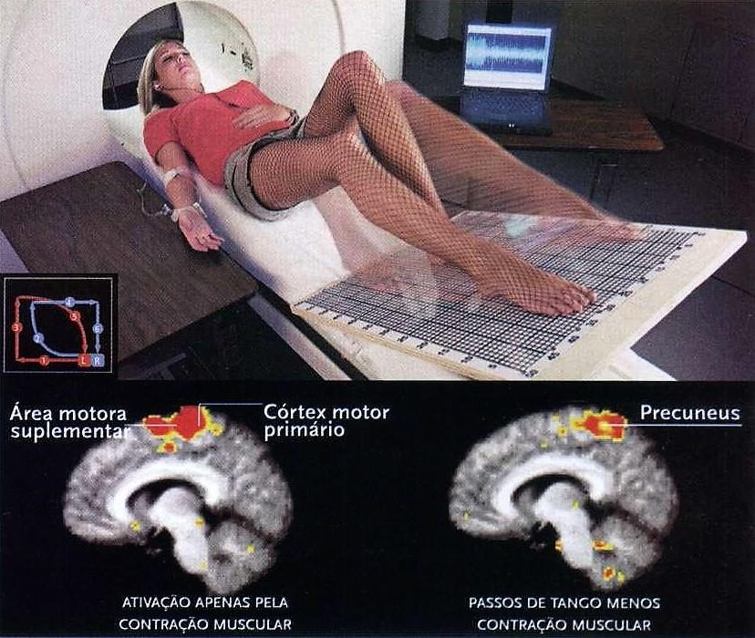Coreografias cerebrais.2